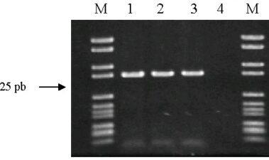 Nuevo método de PCR (Multiplex RAPD) para diferenciar cepas de Oenococcus oeni