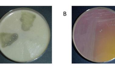 La doble cara de las bacterias lácticas: ¿amigas de conveniencia?
